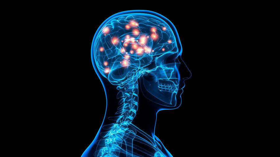 brain cognitive supplements